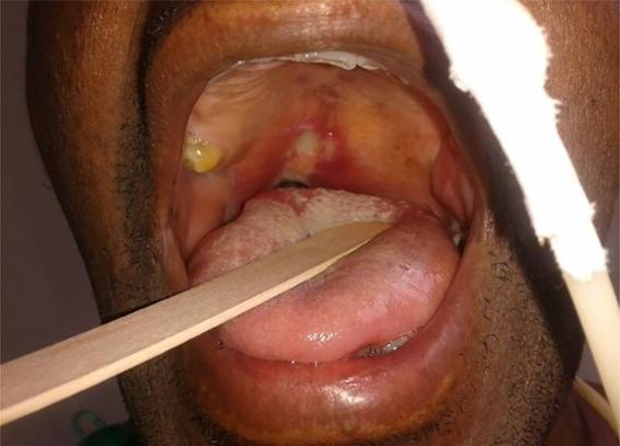 bacillary angiomatosis